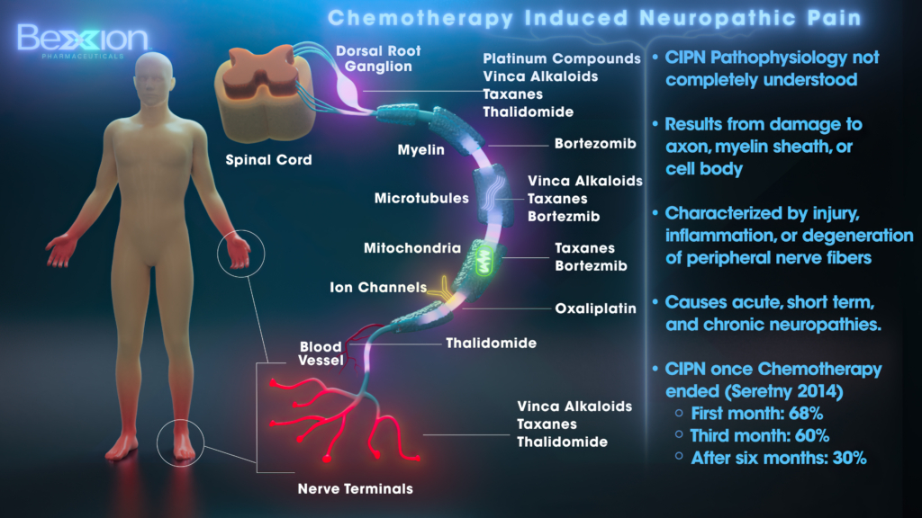 Chemotherapy Induced Neuropathic Pain